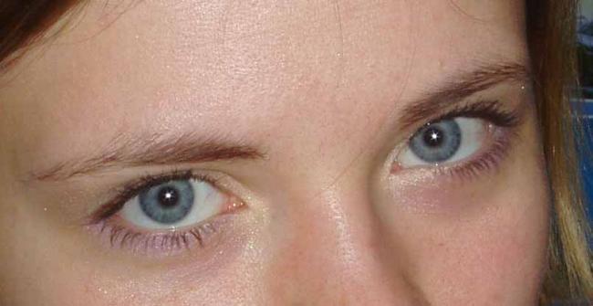 № 35 Глаза...
